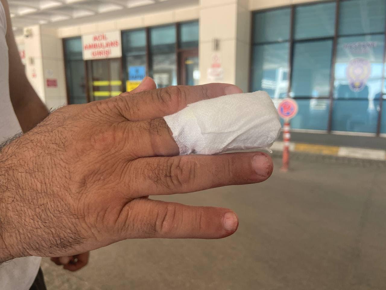 Trakya'da acemi kasaplar hastanelik oldu